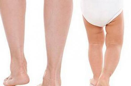 如何的去防止宝宝O型腿的注意事项